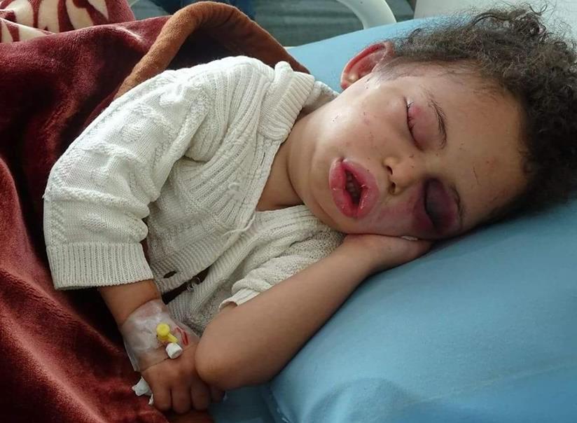 Yemen – End this war!